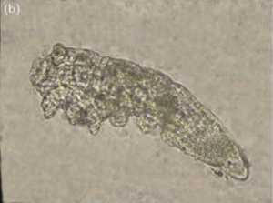 Demodex Mite - Microscopic Image
