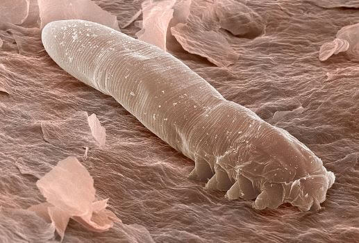 Demodex Under A Microscope